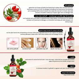 100% Pure Rosehip Seed Oil For Face, Nails, Hair and Skin-