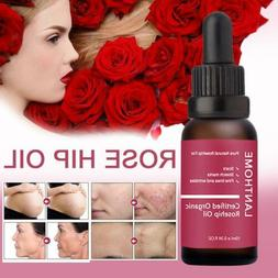 10ml Certified Organic Rosehip Oil 20ml Rosa Canina Seed Oil