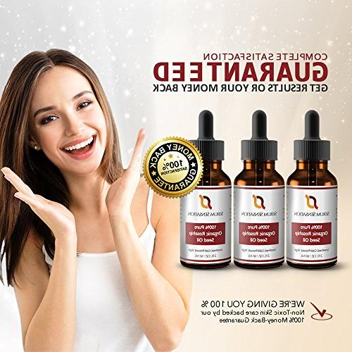 Serum Sensation 100% Pure Organic Rosehip Seed Reduce Acne For Face, Nails, Hair and Skin