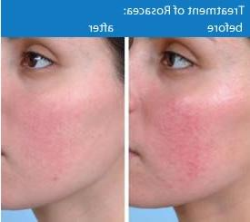 Rosacea CamuClear Natural Serum Made with Stem Cell. Oral