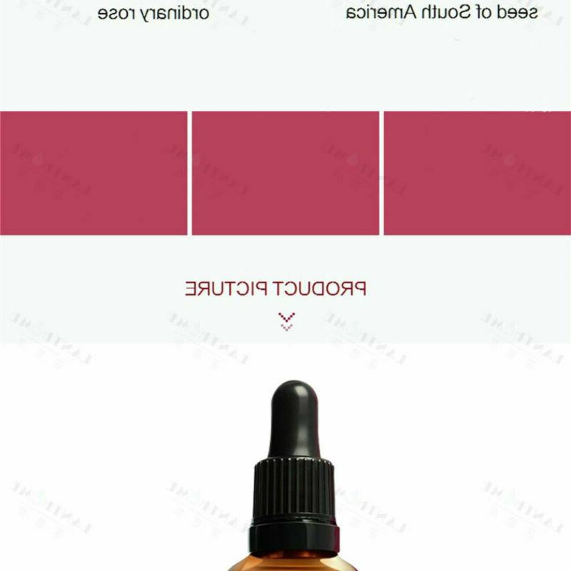 Rosehip Cold Pressed Face Oil Moisturizer Stretch Mark Aging