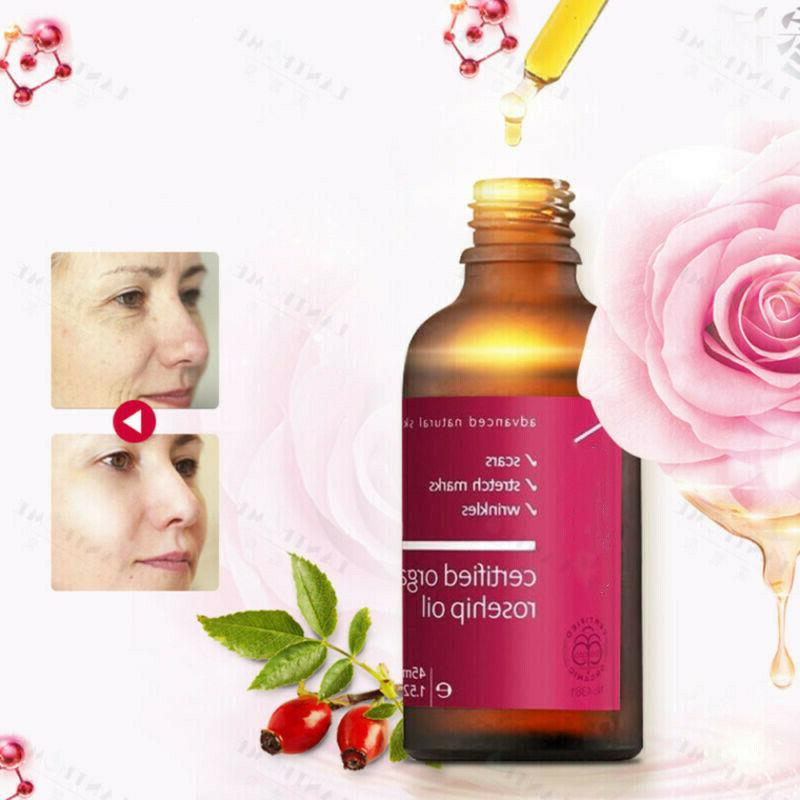 Premium Rosehip 45ml Face Skin Care