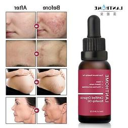 NEW 45ML Trilogy Certified Organic Rosehip Oil for Removes S