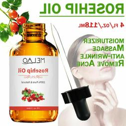 pure rosehip seed oil face and body
