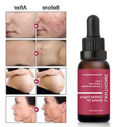 Rosehip Oil Moisturizer Skin Care Acne Scar Stretch Marks Es